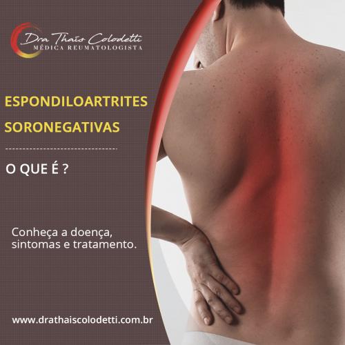 Espondiloartrites Soronegativas - 1 (2)